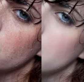 干性皮肤有斑用什么护肤品 用这些淡斑美白一次搞定