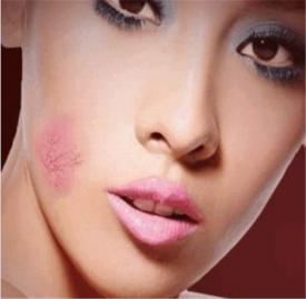 皮肤屏障受损怎么恢复 什么是皮肤屏障
