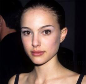 鼻头缩小的切口位置 缩鼻头手术主要有两种切口