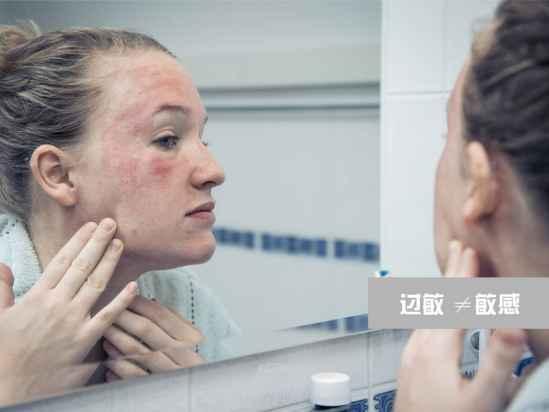 皮肤敏感怎么保养 敏感肌肤护理方法
