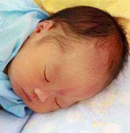 冬天宝宝会长湿疹吗 冬天是儿童干性湿疹的多发期