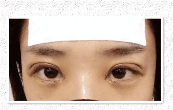 全切双眼皮肉条和肿的区别 你一定要搞清楚这个   全切双眼皮肉条和肿的区别