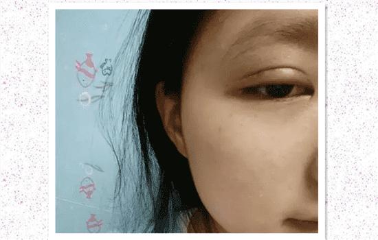 割双眼皮肉条怎么形成的 慎选医生才不会抱憾终生   割双眼皮肉条怎么形成的,割双眼皮肉条是什么
