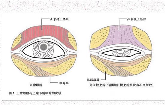 上睑提肌后是永久的吗 正规操作下当然是永久   上睑提肌后是永久的吗,双眼皮提肌是永久的吗,双眼皮提肌能维持多久