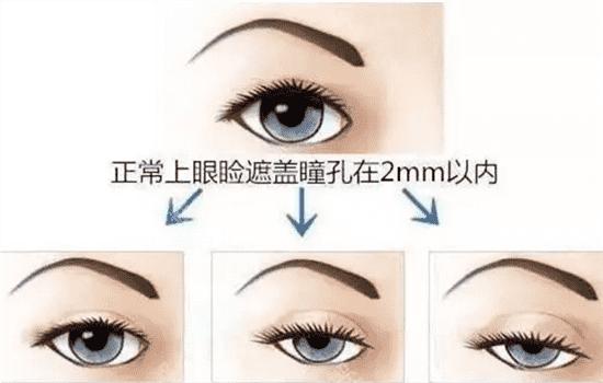 眼睛提肌手术示意图 看完你还敢做吗   眼睛提肌手术示意图,上睑提肌解剖,双眼皮提肌图片