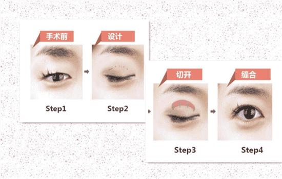 上睑提肌缩短术原理 提肌手术是怎样给你大眼睛的   上睑提肌缩回去给你