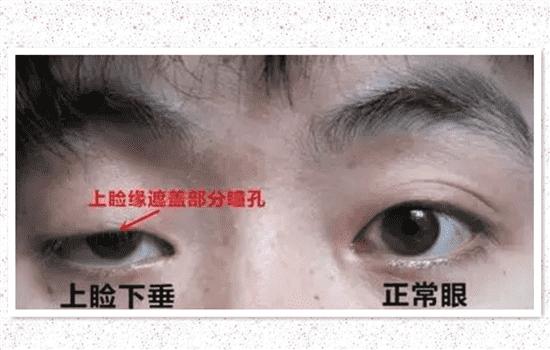 眼睑下垂手术失败图片 第三张不是真的吧    眼睑下垂手术费流量计算机