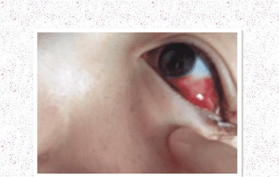 开外眼角的危害 开外眼角面临的4大风险你知道几个   开外眼角的危害,开外眼角风险