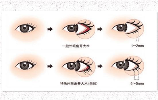开外眼角一般开几毫米 绝大多数需要开4-5mm   开外眼角一般开玩笑而已