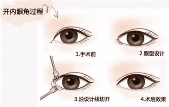 开内眼角和外眼角的区别 图解内外眦开大的四点不同   开内眼角和外眼角的区别图片,开内眼角和外眼角有什么区别,开内眼角与外眼角区别