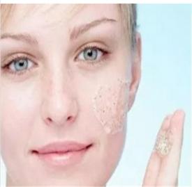 女人下巴长痘是什么原因 你的下巴为何反复长痘