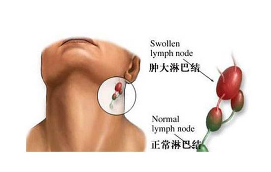 腮腺炎和淋巴结肿大的区别