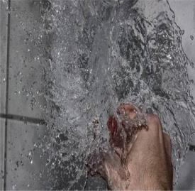 开水烫伤怎么处理 一分钟教你快速急救烫伤