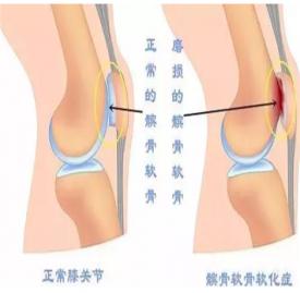 膝关节炎的锻炼方法 患上膝关节炎怎么护理好