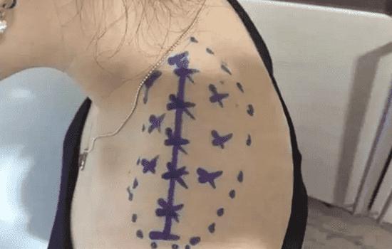 在每个点上注射细肩针的量都不了解无知会支付细肩针的安全剂量