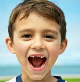 乳牙滞留原因 这六大原因你清楚了吗