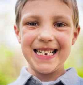 宝宝长牙地包天好不好 牙齿地包天应及早矫正
