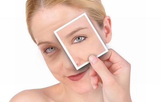 果酸身体乳可以涂脸吗 果酸身体乳为什么能美白