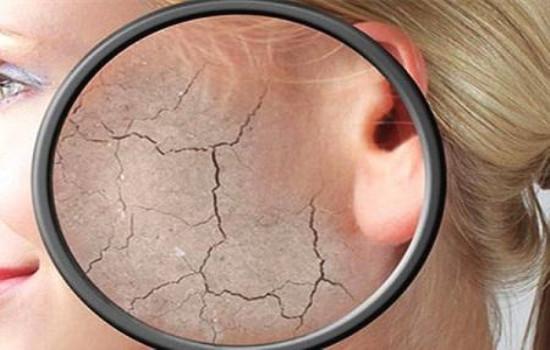 【美天棋牌】皮肤过敏怎么办 春天皮肤过敏怎么办