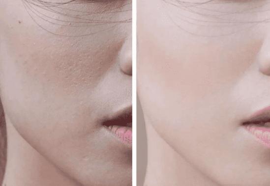 脸上起皮可以去角质吗 这样判断是否需要去角质