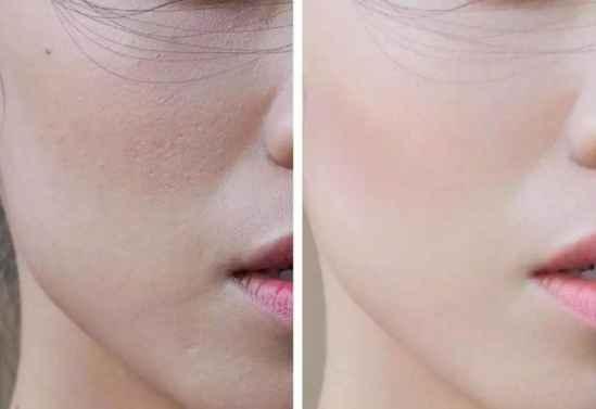 脸部皮肤粗糙 这样做就能改善