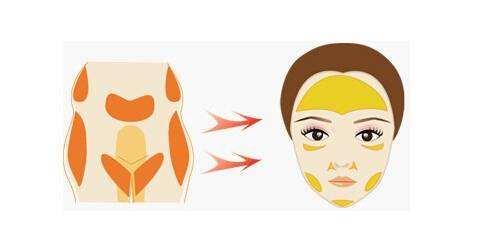 脂肪填充多久擦护肤品 面部脂肪填充的适应症