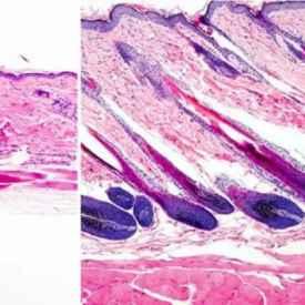 澳大利亚研究出防脱发黑科技,修复毛囊干细胞