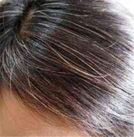 为��力消退啥白头发染不上色 让白头发变黑的方→法有哪些