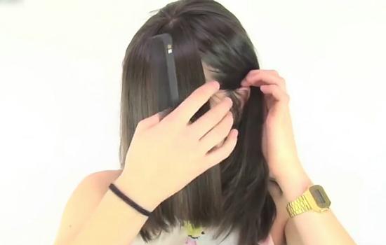 【美天棋牌】刘海三角区秃了怎么办 为什么刘海区容易秃