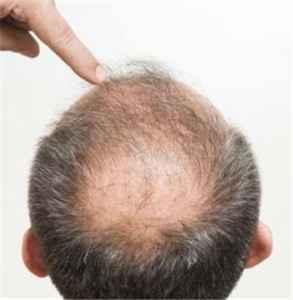 怎么能让头发变浓密 养成良好的生活习惯