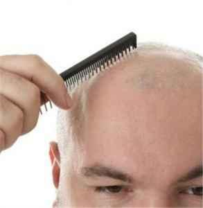 掉头发记忆力减退是什么原因 脱发的几大原因