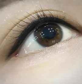 消除眼袋的方法有哪些 眼袋的形成原因