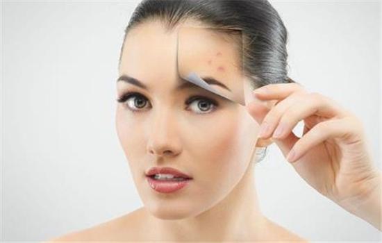 【美天棋牌】眼膜的正确使用方法 眼膜是否需要清洗