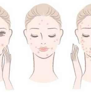 挤痘后用什么消炎最好 挤痘后推荐这几个消炎物品