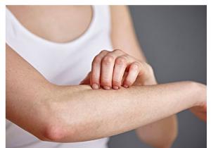 冬季皮肤为什么容易干痒 怎么改善这种问题