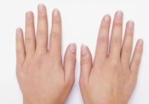 指甲豎紋越多越好嗎 指甲小白點是蛔蟲嗎