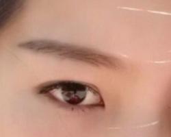 内双自然变双眼皮的方法 内双和单眼皮的区别