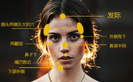 脸部长斑原因分布图 长斑的原因有哪些