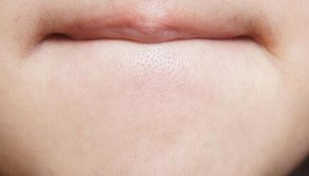 嘴巴周围长粉刺怎么治 为什么长