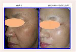 亞洲人皮膚三大特性:初普TriPollar射頻美容儀提供針對性抗老解決方案