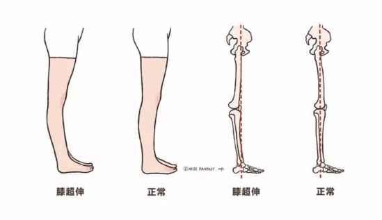 膝超伸怎么办?做什么运动有益?