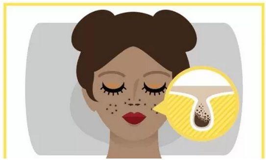 女生脸上毛孔粗大怎么办 快来看看这个0毛孔养成记