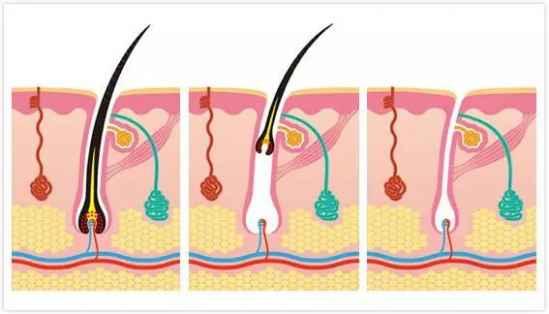 夏季皮肤护理小常识夏季自然保养必不可少