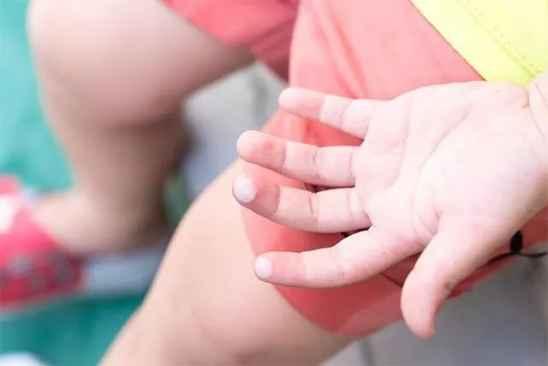 孩子烫伤后怎么处理  这些处理烫伤的偏方  不靠谱千万别用
