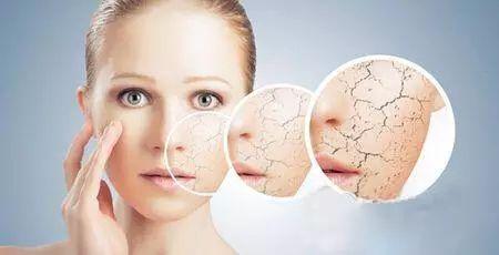 皮肤特别干燥缺水怎么办