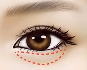 去眼袋用什么方法最佳 五种去眼袋的方法介绍