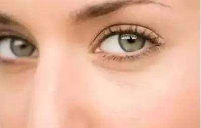 眼袋皱纹怎么去除 多喝这两杯茶保证你眼袋皱纹消失不见