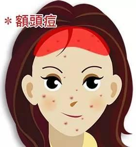 脸上不同部位长痘的解决方法 找好长痘病根才能治疗好